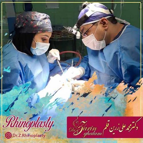 جراحی-بینی-43