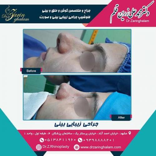 جراحی-بینی-51